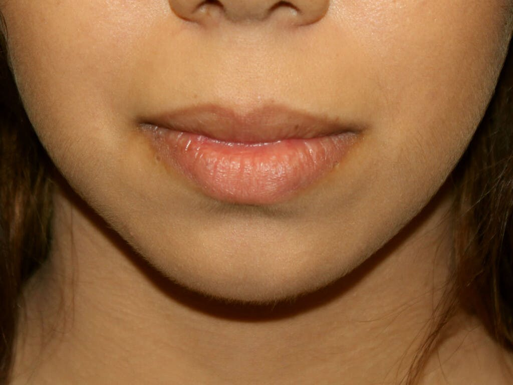 Chin Augmentation Gallery - Patient 39191337 - Image 1