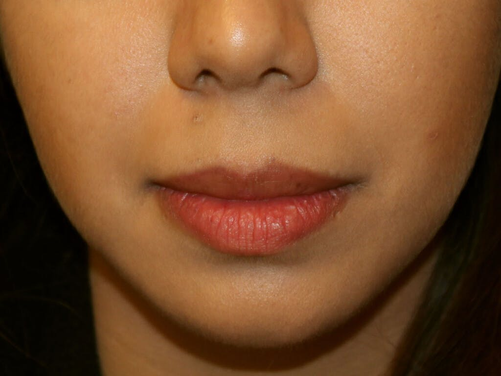 Chin Augmentation Gallery - Patient 39191337 - Image 2