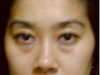 Eyelid Surgery Gallery - Patient 39191331 - Image 1