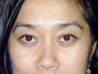 Eyelid Surgery Gallery - Patient 39191331 - Image 2