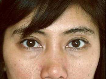 Eyelid Surgery Gallery - Patient 39191338 - Image 1