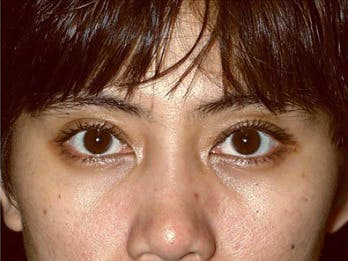 Eyelid Surgery Gallery - Patient 39191338 - Image 2