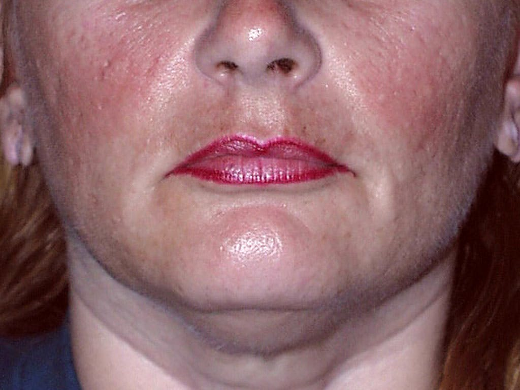 Chin Augmentation Gallery - Patient 39191342 - Image 1