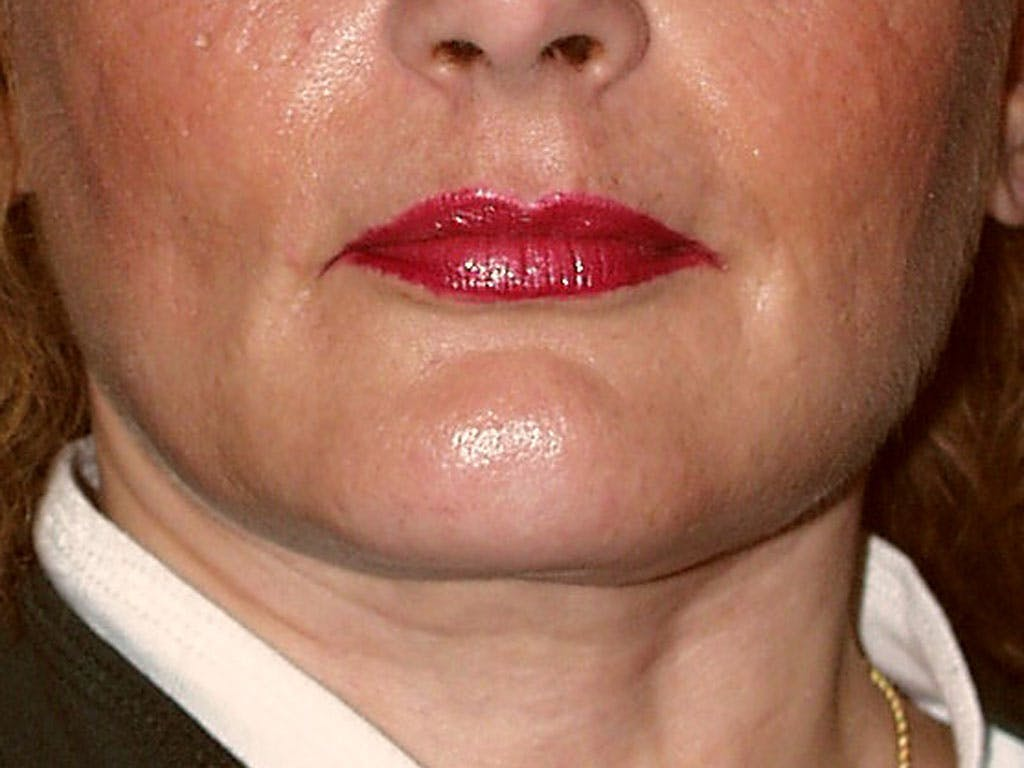 Chin Augmentation Gallery - Patient 39191342 - Image 2
