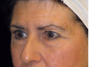 Eyelid Surgery Gallery - Patient 39191340 - Image 1