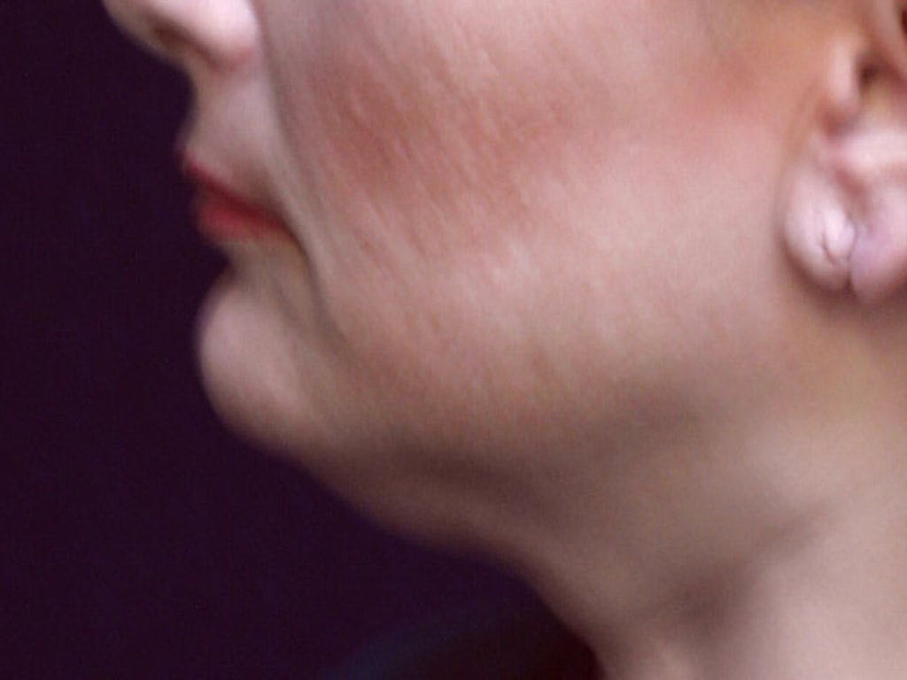 Chin Augmentation Gallery - Patient 39191342 - Image 3