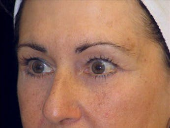 Eyelid Surgery Gallery - Patient 39191340 - Image 2