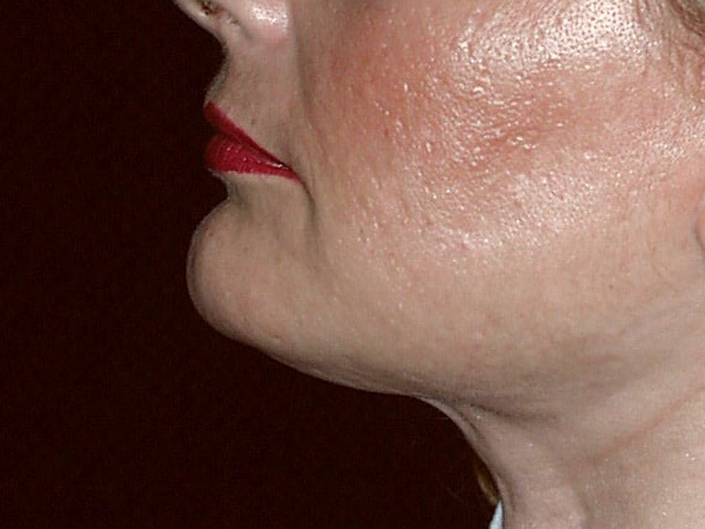 Chin Augmentation Gallery - Patient 39191342 - Image 4
