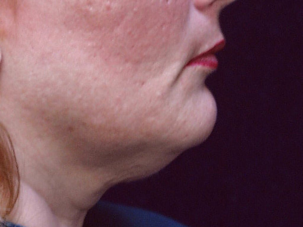 Chin Augmentation Gallery - Patient 39191342 - Image 5