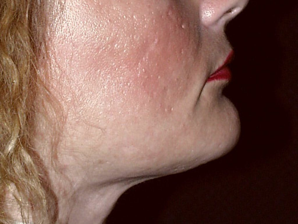 Chin Augmentation Gallery - Patient 39191342 - Image 6