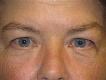 Eyelid Surgery Gallery - Patient 39191344 - Image 1