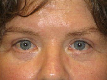 Eyelid Surgery Gallery - Patient 39191344 - Image 2
