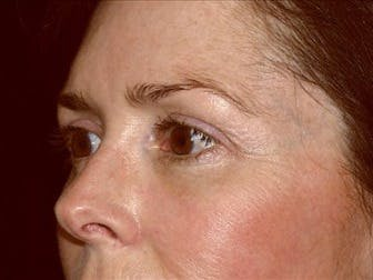 Eyelid Surgery Gallery - Patient 39191347 - Image 2