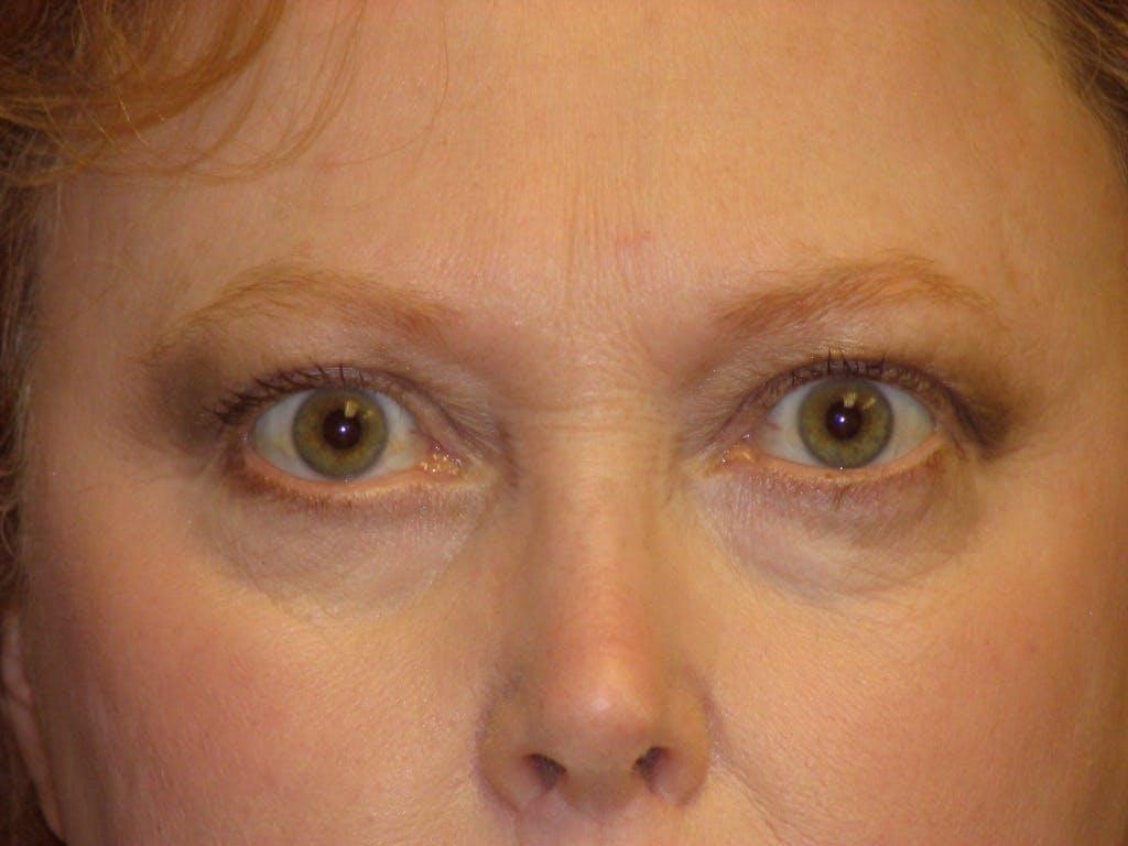 Brow Lift Gallery - Patient 39191354 - Image 1