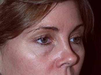 Eyelid Surgery Gallery - Patient 39191349 - Image 1
