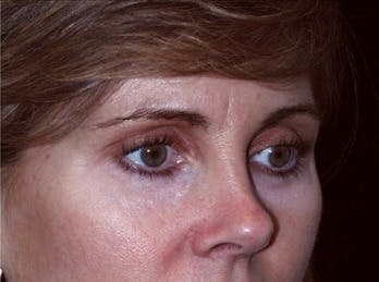 Eyelid Surgery Gallery - Patient 39191349 - Image 2