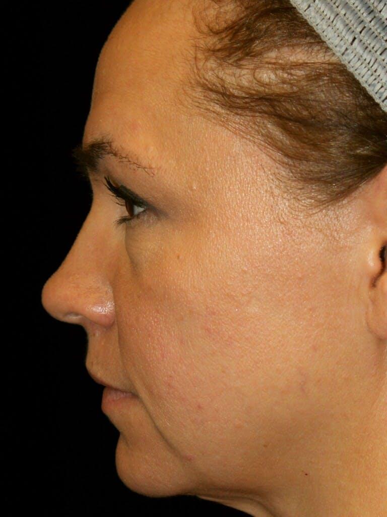 Facelift Gallery - Patient 39191350 - Image 5