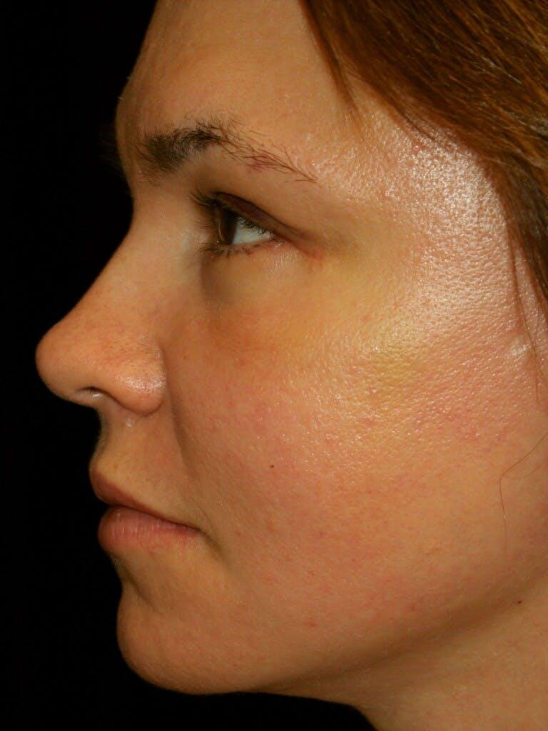 Facelift Gallery - Patient 39191350 - Image 6