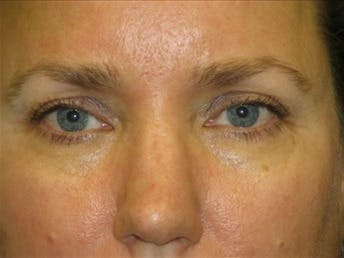 Eyelid Surgery Gallery - Patient 39191351 - Image 1