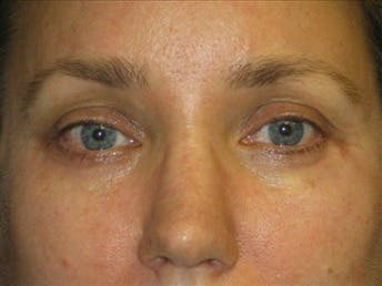 Eyelid Surgery Gallery - Patient 39191351 - Image 2