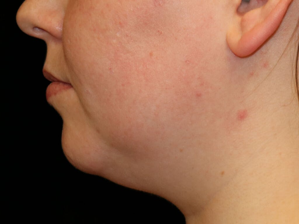 Chin Augmentation Gallery - Patient 39191356 - Image 3