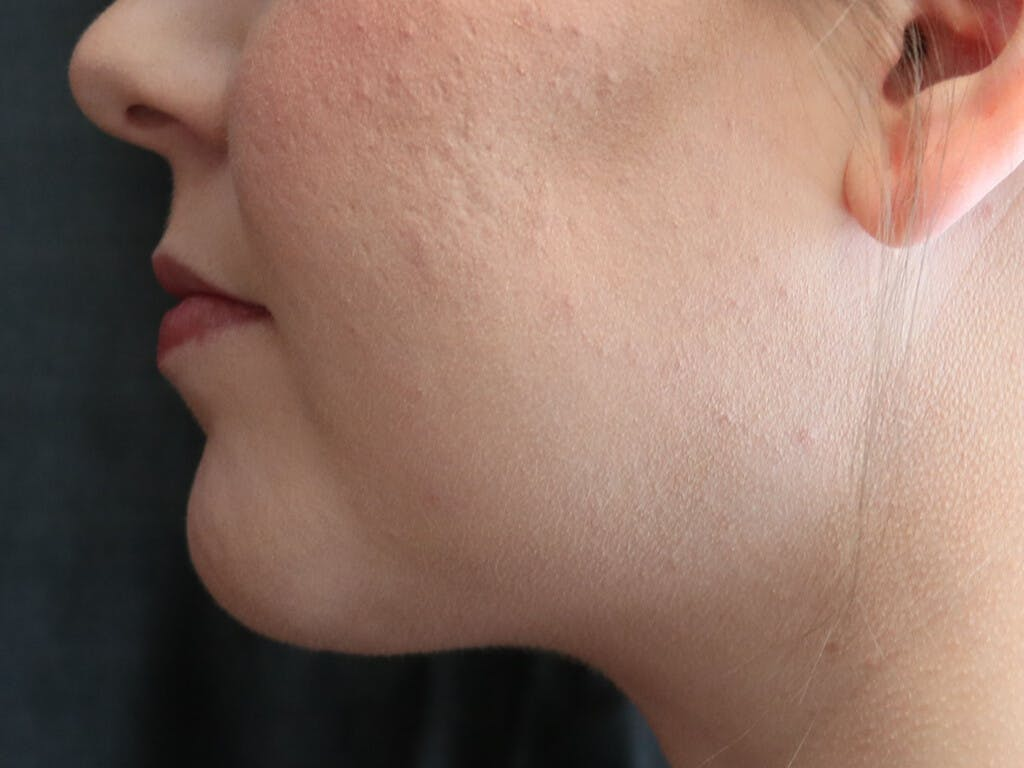 Chin Augmentation Gallery - Patient 39191356 - Image 4
