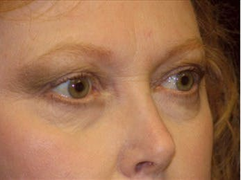 Eyelid Surgery Gallery - Patient 39191355 - Image 1