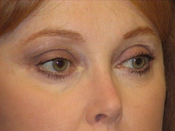 Eyelid Surgery Gallery - Patient 39191355 - Image 2