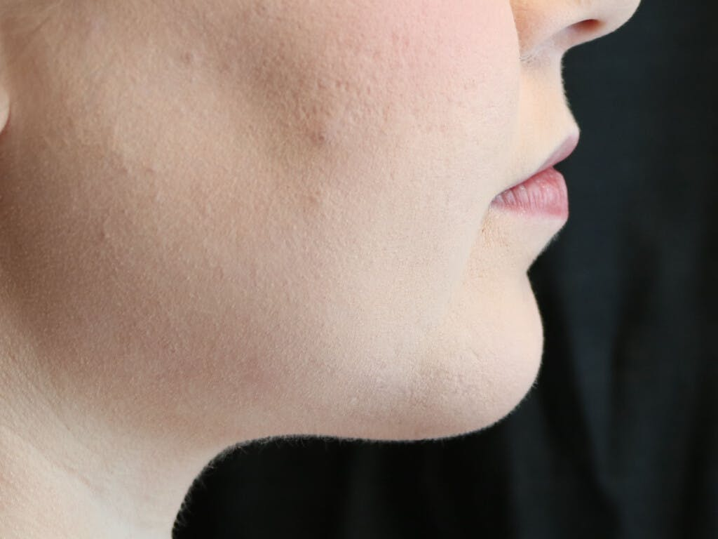 Chin Augmentation Gallery - Patient 39191356 - Image 6