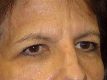 Eyelid Surgery Gallery - Patient 39191357 - Image 1
