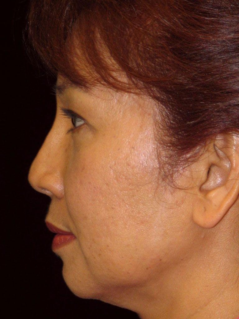 Facelift Gallery - Patient 39191361 - Image 5
