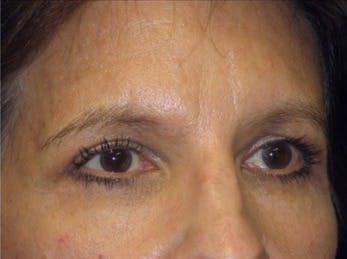 Eyelid Surgery Gallery - Patient 39191357 - Image 2