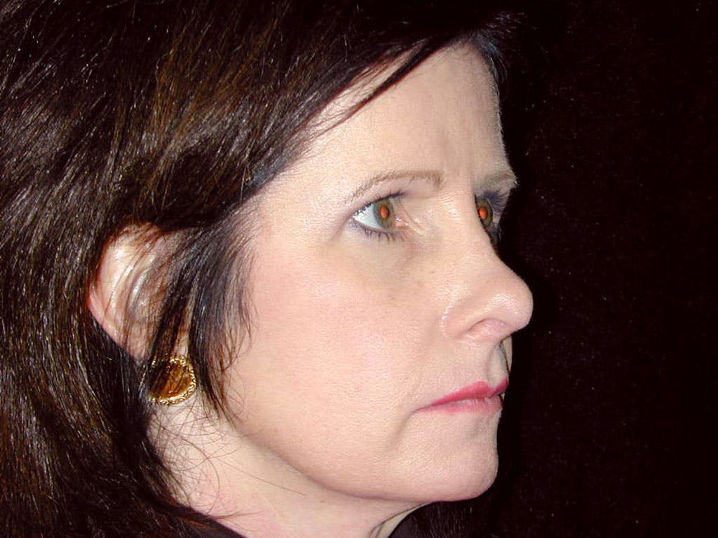 Chin Augmentation Gallery - Patient 39191364 - Image 3