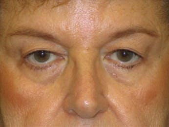 Eyelid Surgery Gallery - Patient 39191363 - Image 1