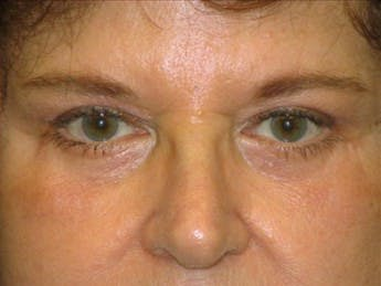 Eyelid Surgery Gallery - Patient 39191363 - Image 2