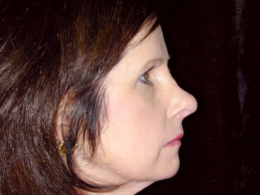 Chin Augmentation Gallery - Patient 39191364 - Image 5