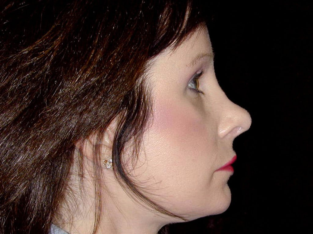 Chin Augmentation Gallery - Patient 39191364 - Image 6