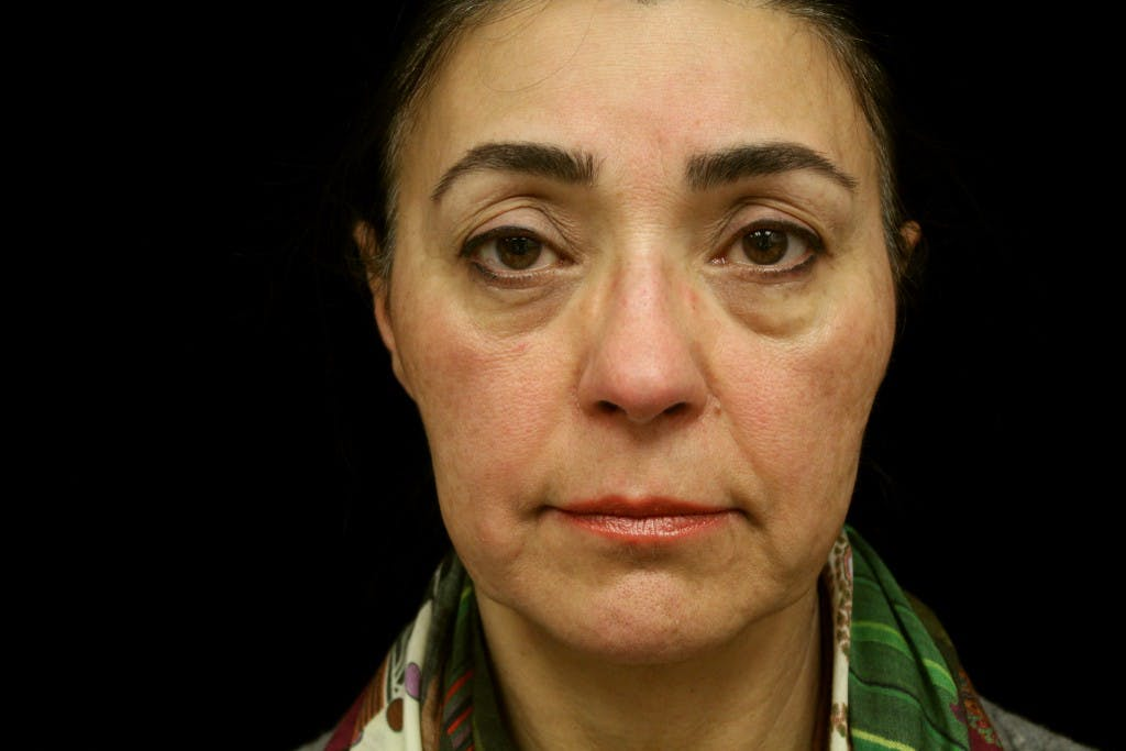 Eyelid Surgery Gallery - Patient 39191366 - Image 1