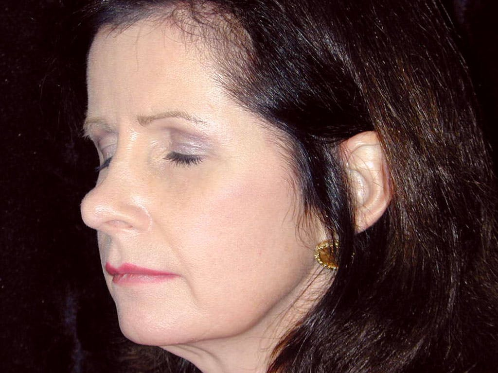 Chin Augmentation Gallery - Patient 39191364 - Image 7