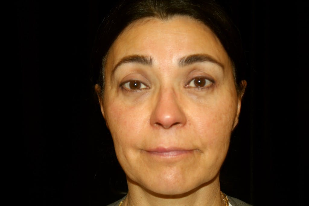 Eyelid Surgery Gallery - Patient 39191366 - Image 2