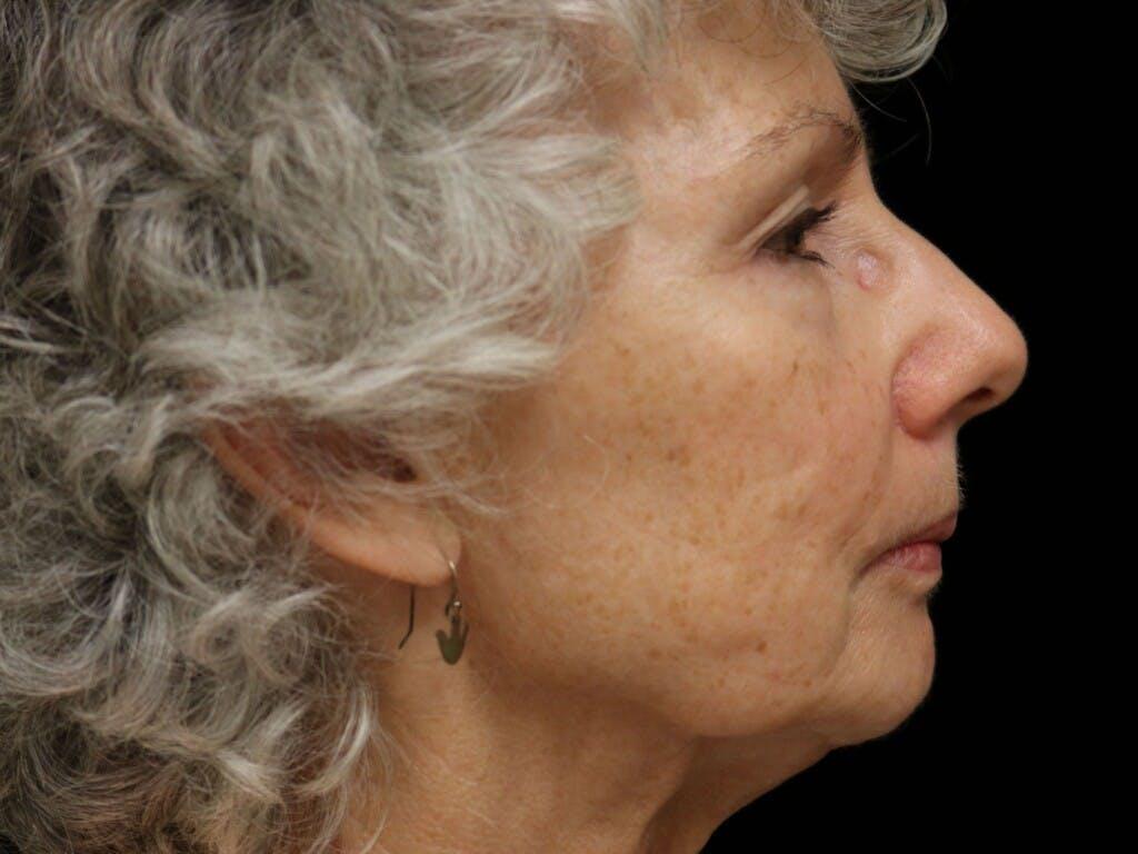 Facelift Gallery - Patient 39191369 - Image 5