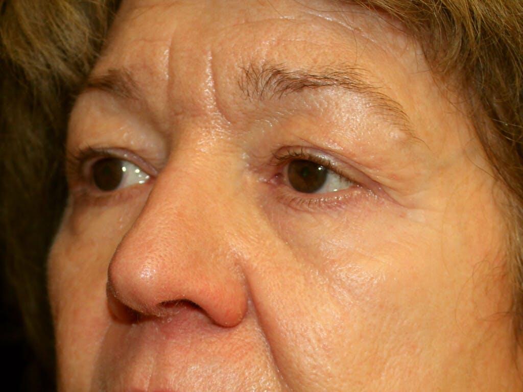 Brow Lift Gallery - Patient 39191367 - Image 5