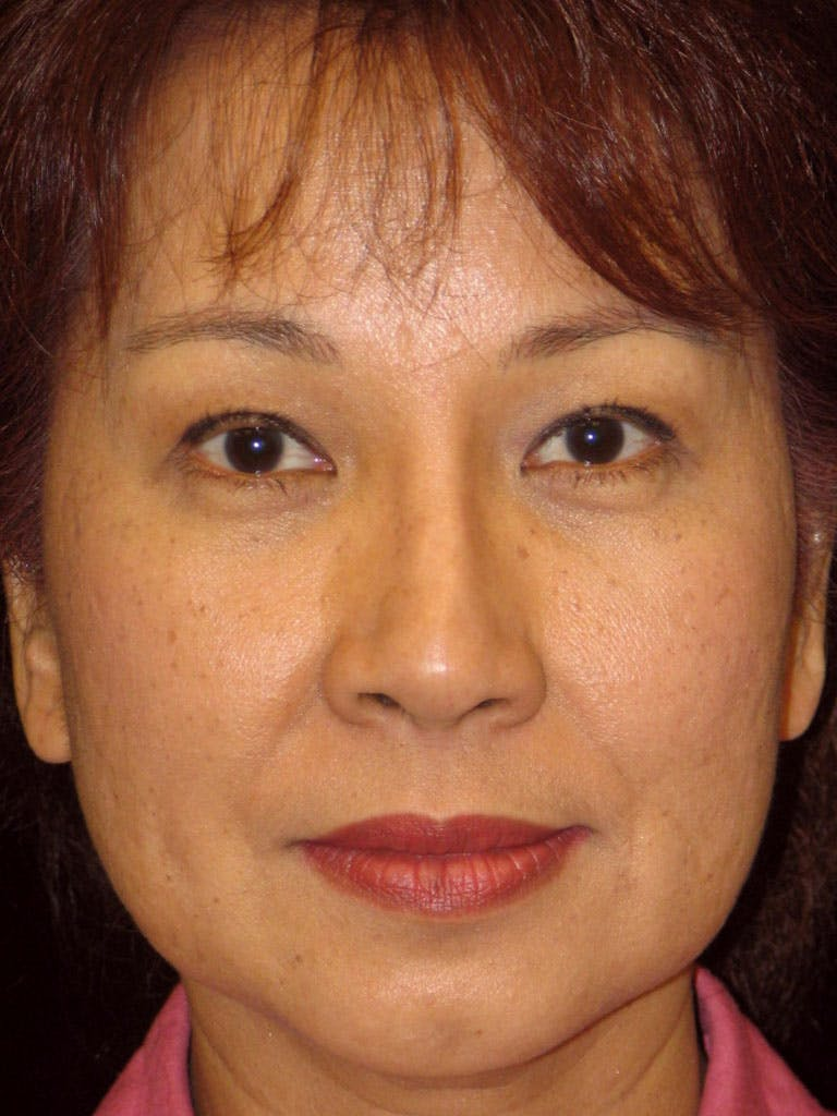 Chin Augmentation Gallery - Patient 39191370 - Image 1