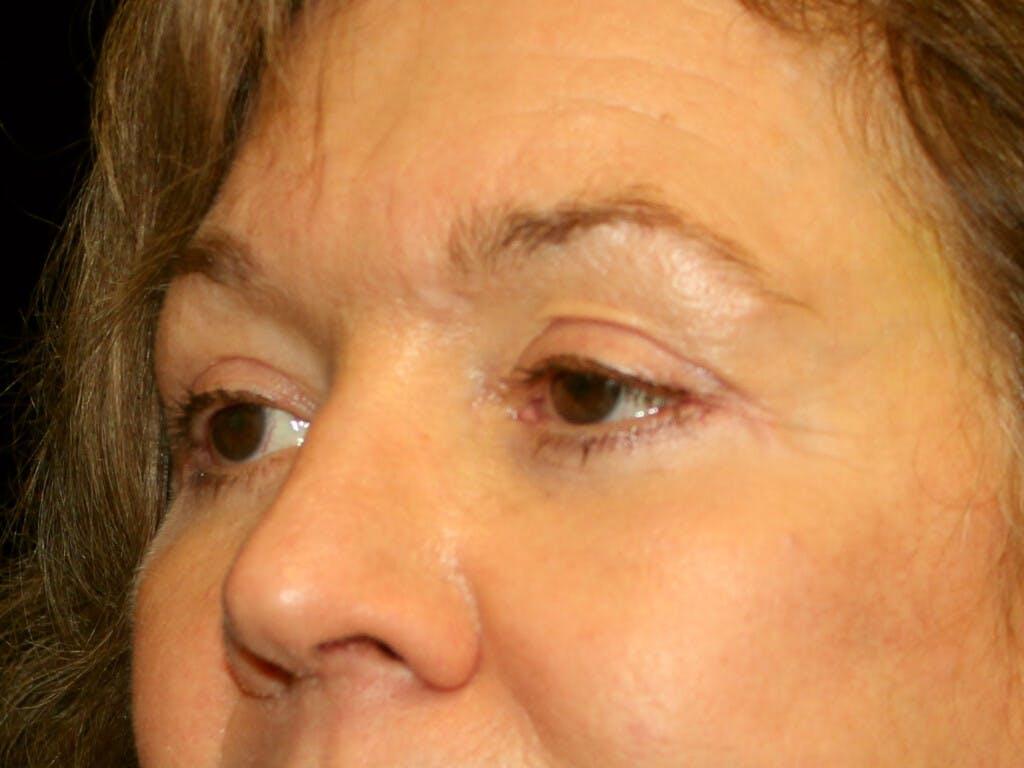 Brow Lift Gallery - Patient 39191367 - Image 6