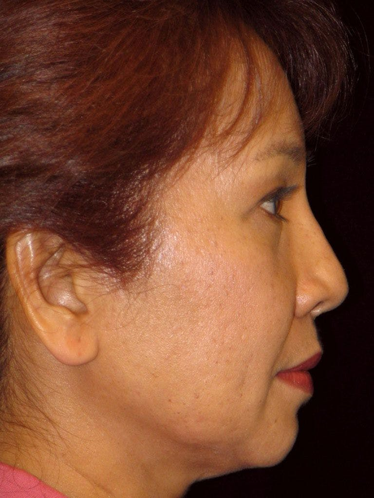 Chin Augmentation Gallery - Patient 39191370 - Image 3