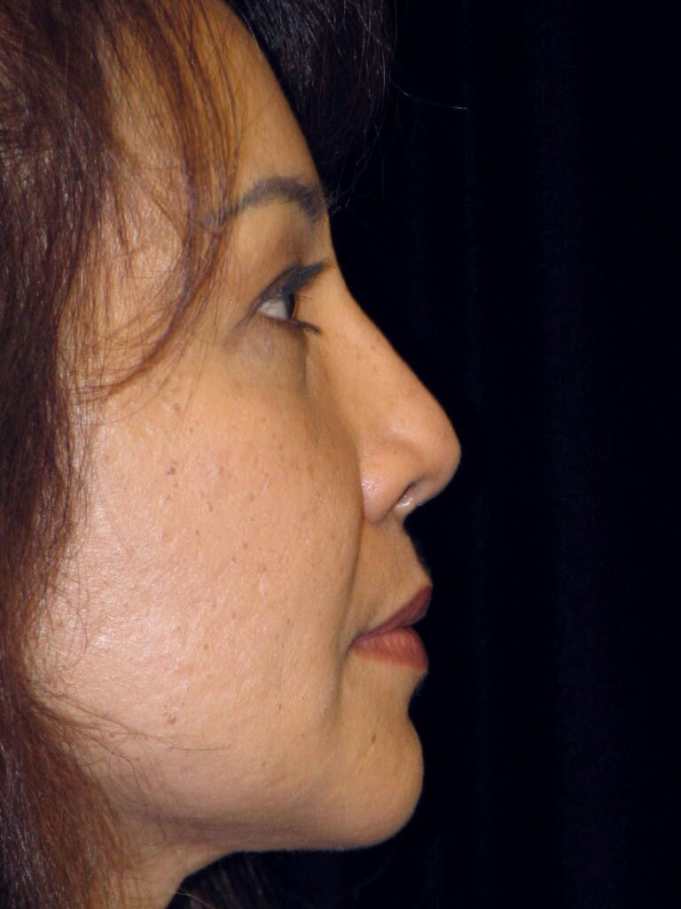 Chin Augmentation Gallery - Patient 39191370 - Image 4