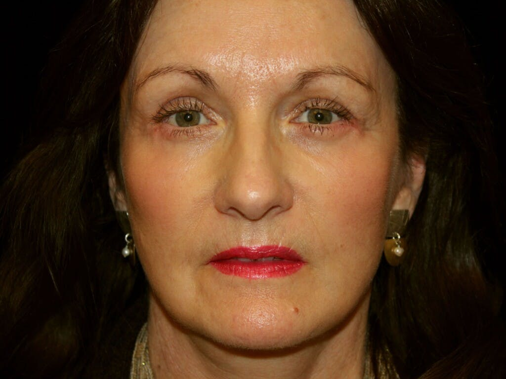Eyelid Surgery Gallery - Patient 39191373 - Image 2