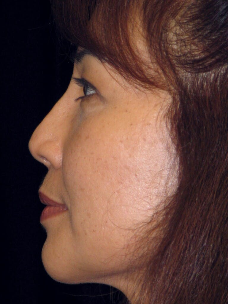 Chin Augmentation Gallery - Patient 39191370 - Image 6