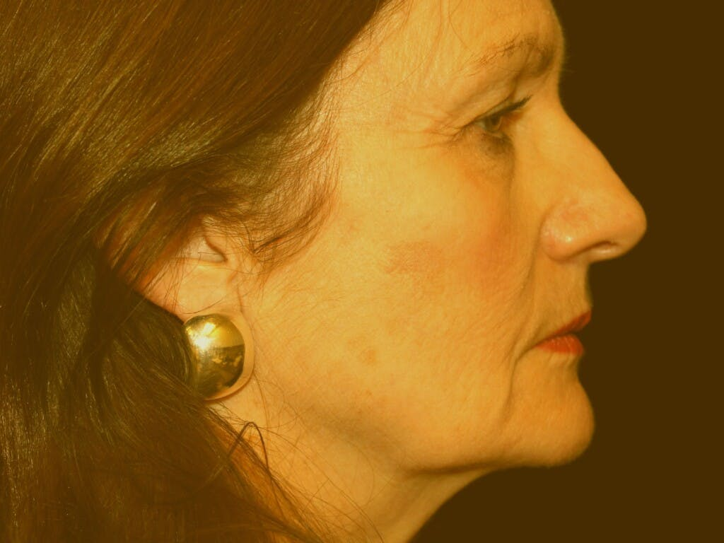 Eyelid Surgery Gallery - Patient 39191373 - Image 5