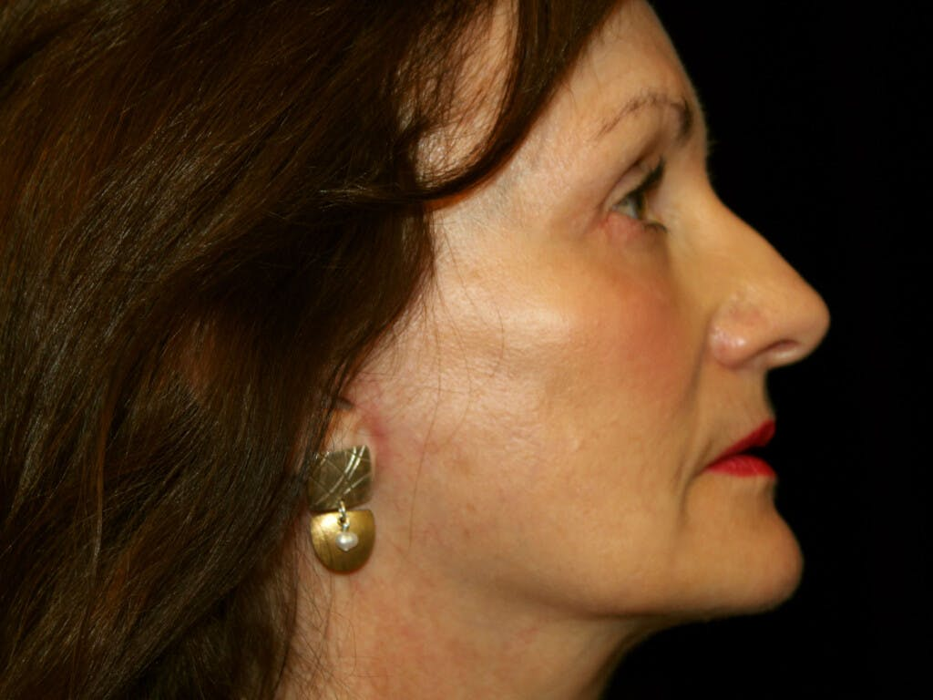 Eyelid Surgery Gallery - Patient 39191373 - Image 6